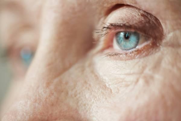 راز و رمز روش جوانسازی چهره با آندوسکوپ