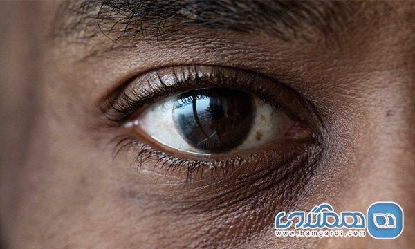 روش های درمان مگس پران چشم